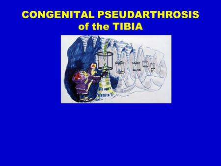 ICLL: CPT CONGENITAL PSEUDARTHROSIS of the TIBIA.
