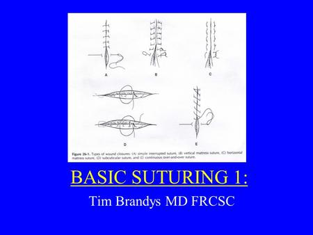 BASIC SUTURING 1: Tim Brandys MD FRCSC. Principles of Wound Closure: 1.Equal Bites on each side of the wound 2.Distance between sutures = distance suture.