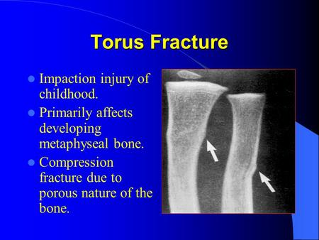 Torus Fracture Impaction injury of childhood.