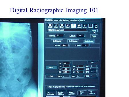 Digital Radiographic Imaging 101. Digital radiography (DR), image receptors, film digitizer, noise, signal to noise ratio, area beam, xenon gas detectors,