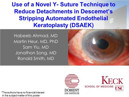 Use of a Novel Y- Suture Technique to Reduce Detachments in Descemet's Stripping Automated Endothelial Keratoplasty (DSAEK) Habeeb Ahmad, MD Martin Heur,