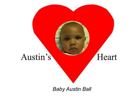 Austin's Heart Baby Austin Ball MEET AUSTIN At 28 weeks gestation a huge tumor was found in Austin's heart. It is called a left ventricular mass. The.