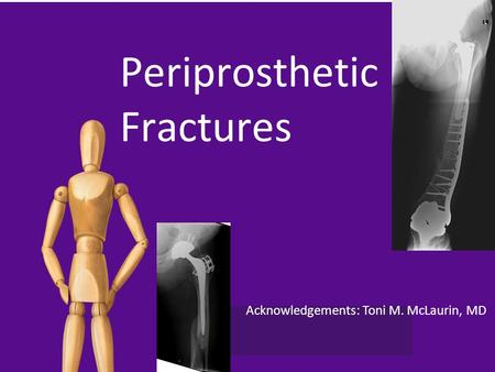 Acknowledgements: Toni M. McLaurin, MD Periprosthetic Fractures.
