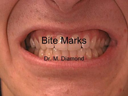 Bite Marks Dr. M. Diamond. Dental Identification Victims –Especially from fires or explosions –By dental records Suspects –Match dental impressions to.
