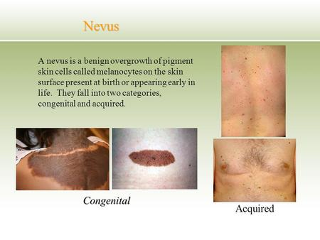 Nevus Acquired Congenital Acquired