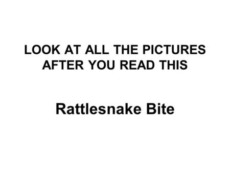 LOOK AT ALL THE PICTURES AFTER YOU READ THIS Rattlesnake Bite.
