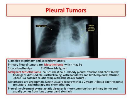 Pleural Tumors Classified as primary and secondary tumors . Primary Pleural tumors are Mesotheiloma which may be 1-Localized benign 2- Diffuse Malignant.