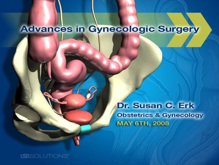Definition Types of Hysterectomy Reasons for Hysterectomy Surgical Options Advantages/Disadvantages Questions & Answers.