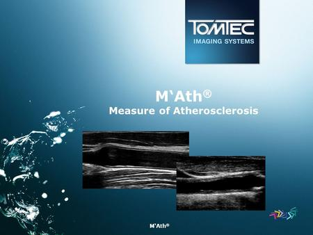 M'Ath ® M'Ath ® Measure of Atherosclerosis. M'Ath ®