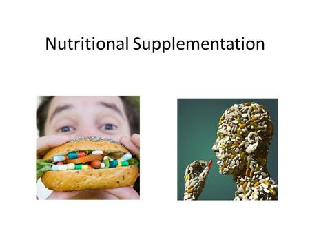 Nutritional Supplementation. Dietary Supplements Products intended to supplement the diet that contain at least one dietary ingredient to include: – Vitamins.