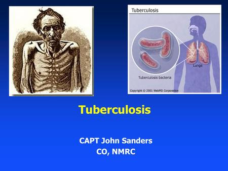 Tuberculosis CAPT John Sanders CO, NMRC. 2 Outline Importance of TB Clinical Overview of TB Active vs. Latent TB Active TB diagnosis and treatment LTBI.