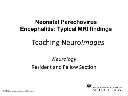 Teaching NeuroImages Neurology Resident and Fellow Section © 2013 American Academy of Neurology Neonatal Parechovirus Encephalitis: Typical MRI findings.