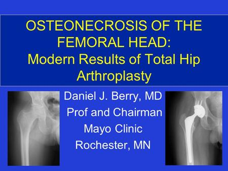 OSTEONECROSIS OF THE FEMORAL HEAD: Modern Results of Total Hip Arthroplasty Daniel J. Berry, MD Prof and Chairman Mayo Clinic Rochester, MN.