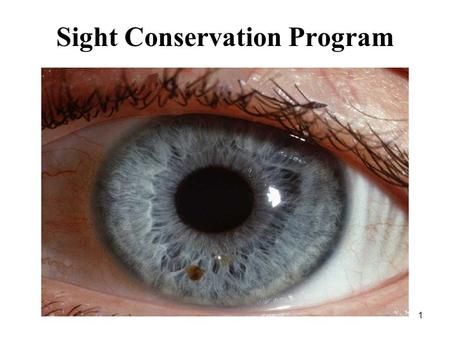 1 Sight Conservation Program. 2 Overview MC policy Identify eye hazardous areas by conducting an industrial hygiene survey Post signs Provide personnel.