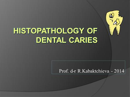Prof. d-r R.Kabaktchieva - 2014. What is Dental Caries? It is a microbial disease of the calcified tissues of the teeth, characterized by demineralization.