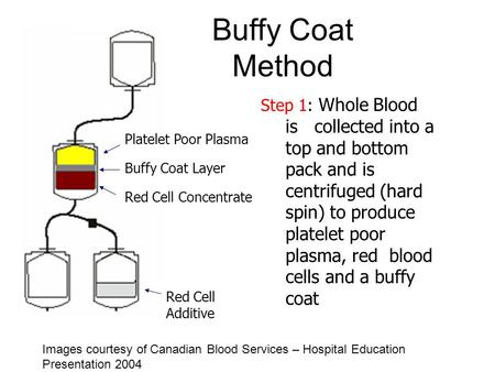 Buffy Coat Method Platelet Poor Plasma Step 1: Whole Blood is collected into a top and bottom pack and is centrifuged (hard spin) to produce platelet poor.