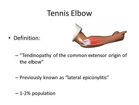 "Tennis Elbow Definition: – ""Tendinopathy of the common extensor origin of the elbow"" – Previously known as ""lateral epiconylitis"" – 1-2% population."