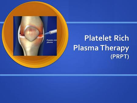 Platelet Rich Plasma Therapy (PRPT). What is PRPT? New treatment gaining popularity in the Sports Medicine field of rehabilitation used for orthopedic.