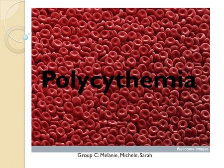 Polycythemia Group C: Melanie, Michele, Sarah. Polycythemia Polycythemia is an increase in RBC production (erythrocytosis) and can be relative or absolute.