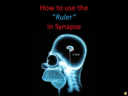 "How to use the ""Ruler"" in Synapse Right Click & choose ""Ruler"""