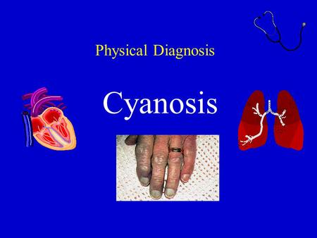 Physical Diagnosis Cyanosis. Definition Cyanosis refers to a bluish( 带蓝色的; 带青色的 )color of the skin and mucous membranes resulting from an increased quantity.