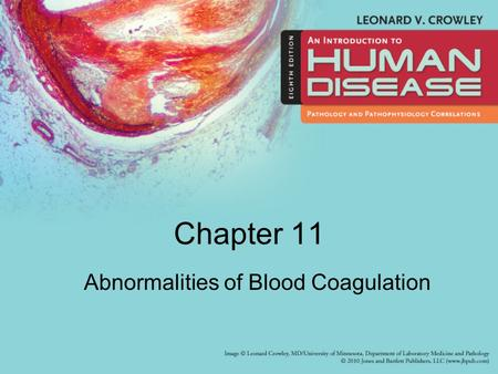 Chapter 11 Abnormalities of Blood Coagulation.