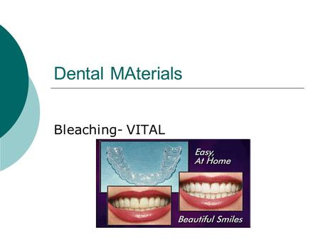 Dental MAterials Bleaching- VITAL 1. Describe the process of bleaching  3 techniques  In office (heat/light)  At Home (trays)  Over the counter 