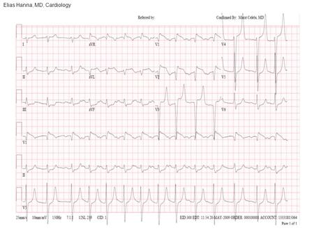 Elias Hanna, MD, Cardiology. Differential diagnosis: Anterior STEMI with hyperacute ischemic T wave and inferior ST depression versus Hyperkalemia. -However,