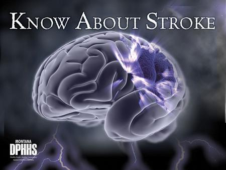 Recognize —Stroke symptoms Reduce —Stroke risk Respond —At the first sign of stroke, CALL 9-1-1 IMMEDIATELY! © 2011 National Stroke Association Be Stroke.