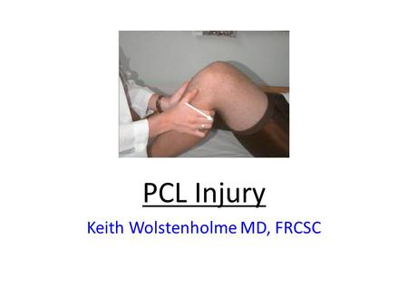 PCL Injury Keith Wolstenholme MD, FRCSC. PCL Anatomy and Function PCL travels – from posterior fovea of tibia (1.5cm inferior to joint line) – to lateral.