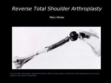 -- First shoulder arthroplasty