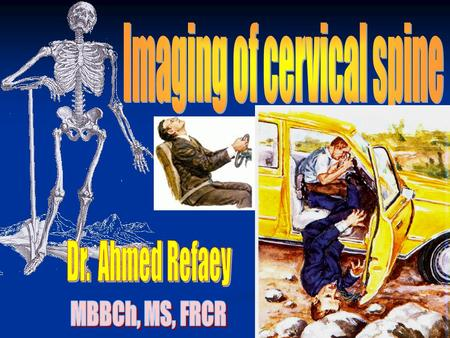 3% of MVA patients, have cervical spine injury 3% of MVA patients, have cervical spine injury 10-20% patients with head injury, have also cervical spine.