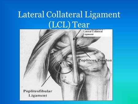 Lateral Collateral Ligament (LCL) Tear. Development of LCL Tear A varus force to the medial aspect of the knee while bearing weight can put enough stress.
