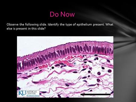 Observe the following slide. Identify the type of epithelium present. What else is present in this slide? Do Now.