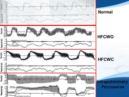 Normal HFCWO HFCWC Intrapulmonary Percussive. Case Report 7/14-8/3/2011  21 year old female admitted with acute respiratory failure requiring mechanical.