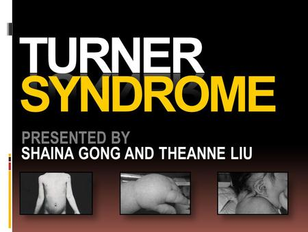 TURNER SYNDROME PRESENTED BY SHAINA GONG AND THEANNE LIU.