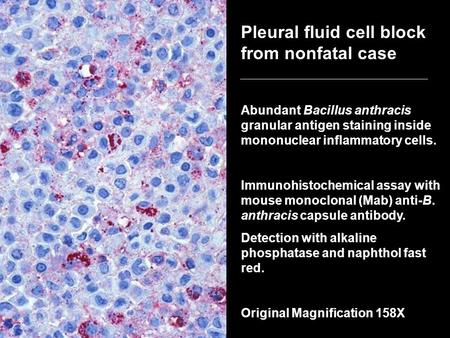 Pleural fluid cell block from nonfatal case Abundant Bacillus anthracis granular antigen staining inside mononuclear inflammatory cells. Immunohistochemical.