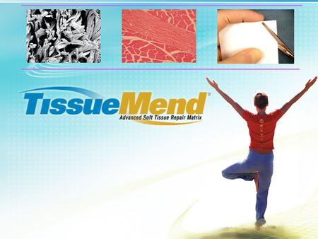 Introduction TissueMend ® is a strong, suturable, porous collagen biomembrane that is derived from fetal bovine dermis. Through a proprietary process,