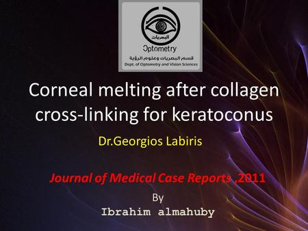 Corneal melting after collagen cross-linking for keratoconus Journal of Medical Case Reports,2011 By Ibrahim almahuby Dr.Georgios Labiris.