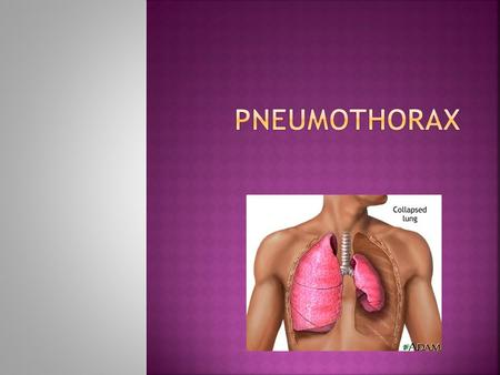 Presence of air in the pleural space  Primary spontaneous pneumothorax  Secondary spontaneous pneumothorax  Tension pneumothorax  Traumatic pneumothorax.