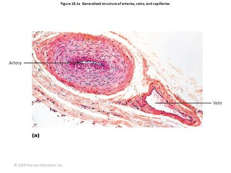 © 2014 Pearson Education, Inc. Figure 18.1a Generalized structure of arteries, veins, and capillaries. Artery Vein.