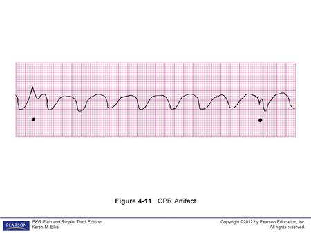Copyright ©2012 by Pearson Education, Inc. All rights reserved. EKG Plain and Simple, Third Edition Karen M. Ellis Figure 4-11 CPR Artifact.