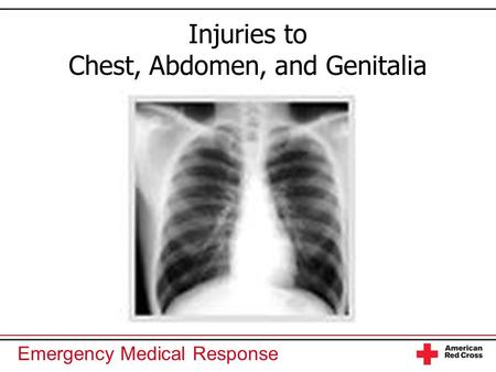 Injuries to Chest, Abdomen, and Genitalia