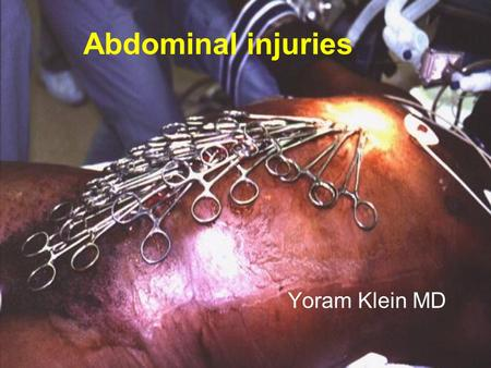 Abdominal injuries Yoram Klein MD. Introduction  Suture repair of bowel - the 15th century.  Routine exploration not employed until WW I. – mortality.