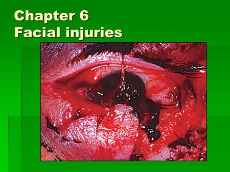Chapter 6 Facial injuries. Objectives  Describe the basic anatomy of the face.  Describe how common facial injuries occur.  Explain the common types.