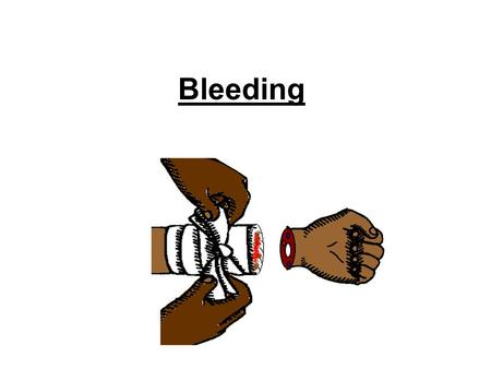 Bleeding. Bleeding (hemorrhage) Bleeding (hemorrhage) is the escape of blood from capillaries, veins, and arteries. Arteries are large blood vessels that.