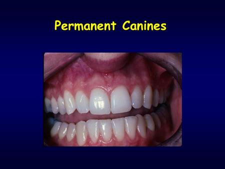 "Permanent Canines. Introduction ""Cornerstones of the mouth"" - 3rd from midline (""eye-teeth"") Situated between incisors and premolars Form: single cusp."