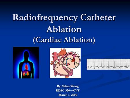 Radiofrequency Catheter Ablation (Cardiac Ablation) By: Silvia Wong RDSC 326—CVT March 1, 2006.