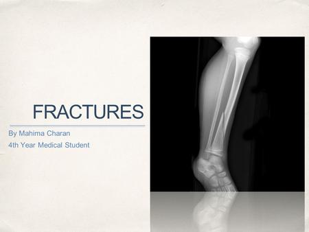 FRACTURES By Mahima Charan 4th Year Medical Student.