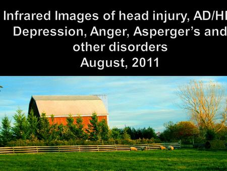 Infrared Images of head injury, AD/HD, Depression, Anger, Asperger's and other disorders August, 2011.